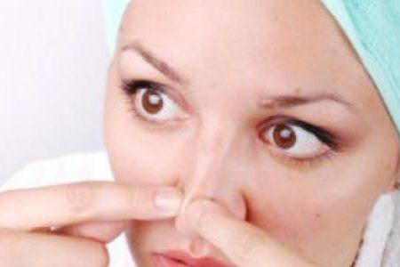 علاجات طبيعية للتخلص من الرؤوس السوداء على البشرة