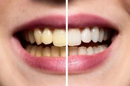 اسباب مختلفة تقف وراء اصفرار اسنانك